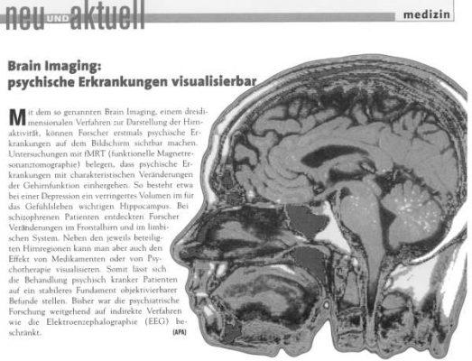 20040125 aerztezeitung psyche visualisierbar