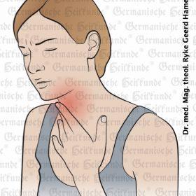 Organ Larynx - Symptoms according to Germanische Heilkunde®