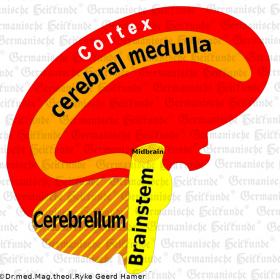 Organ Brain - Symptoms according to the Germanische Heilkunde®