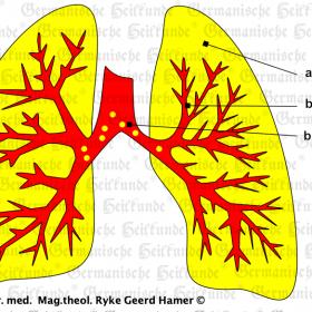 Orgaan long – symptomen volgens de Germanische Heilkunde